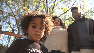 Black children's chances of surviving surgery far lower than white children, researchers find